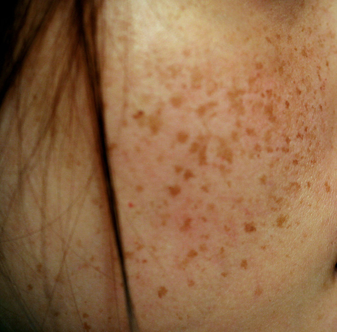 EXPERIENCING SKIN DISCOLORATION DURING PREGNANCY?