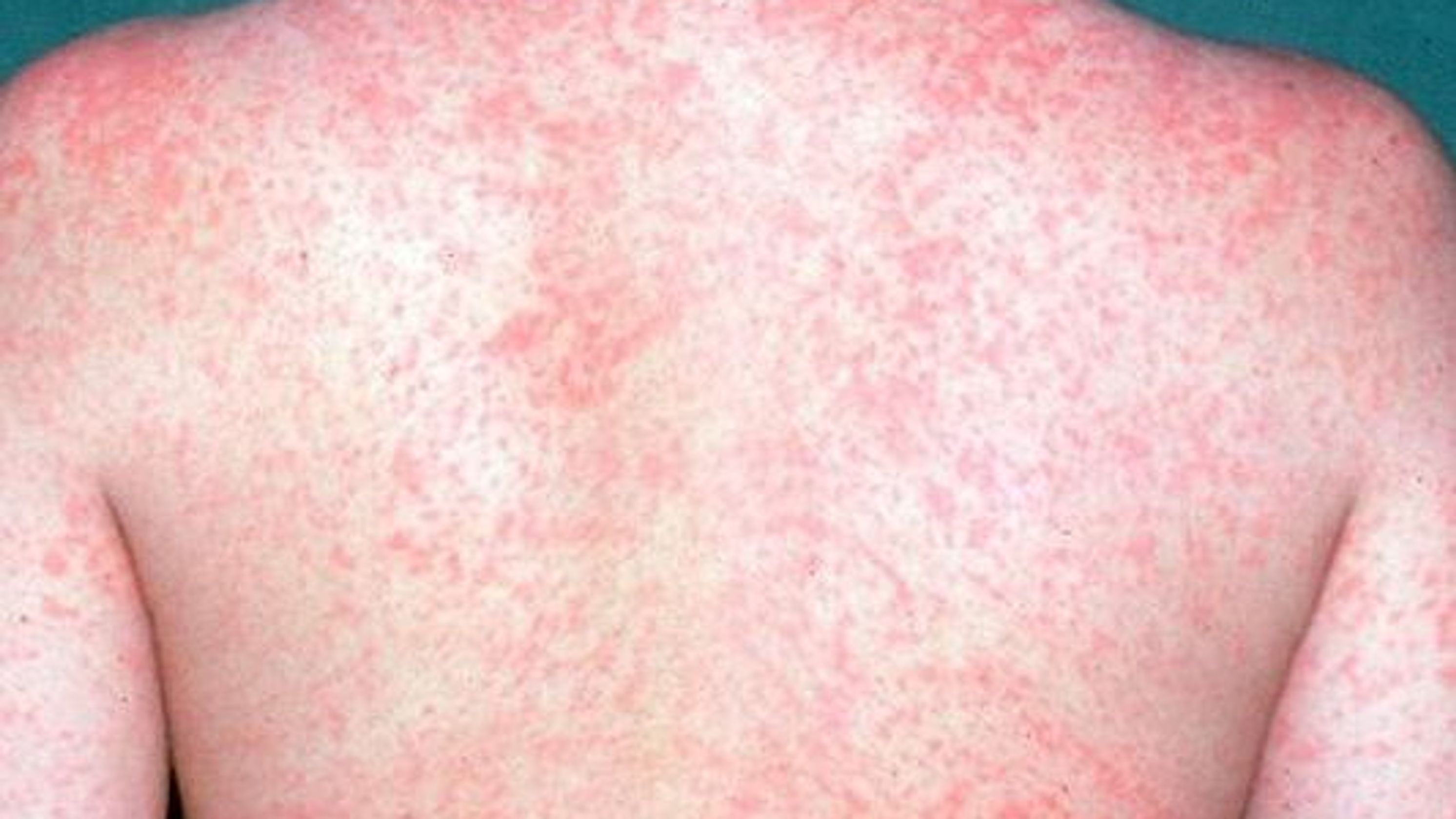 MEASLES WHAT YOU NEED TO KNOW AND DO TO OVERCOME IT